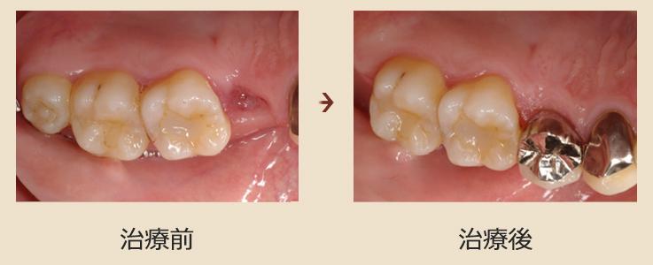自家歯牙移植について